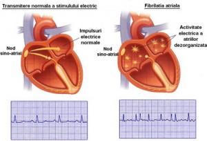 ritmul cardiac